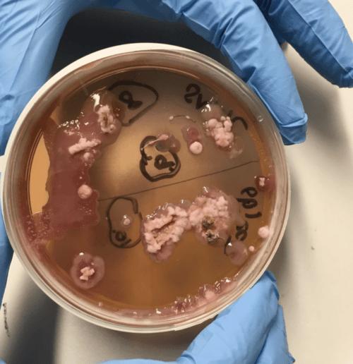 Los fatberg generan una gran  proliferación de bacterias